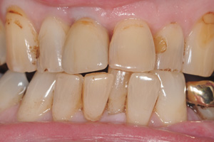 Implants-bone-graft-and-implant-after
