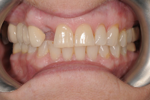 Implants-single-2