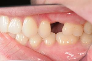Single-pre-molar-1