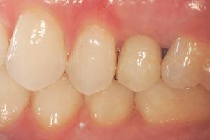 Single-pre-molar-2