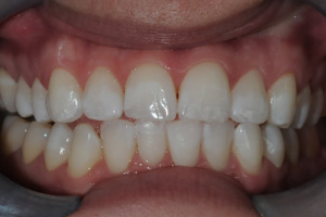 DISCOLOURED-TEETH-3-after