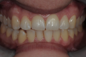 DISCOLOURED-TEETH-3-before