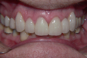 DISCOLURED-TEETH-1-after