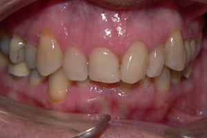 DISCOLURED-TEETH-1-before