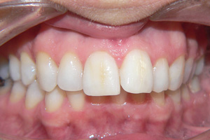 DISCOLURED-TEETH-2-after