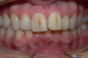 DISCOLURED-TEETH-2-before