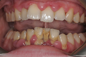Gum-Disease-Before