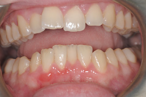 Gum-Disease-after