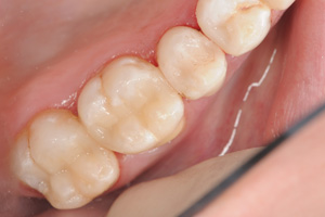 Old-metal-fillings-after