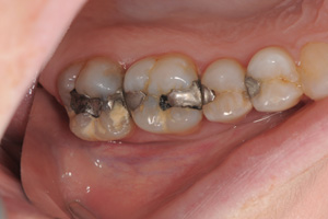 Old-metal-fillings-before