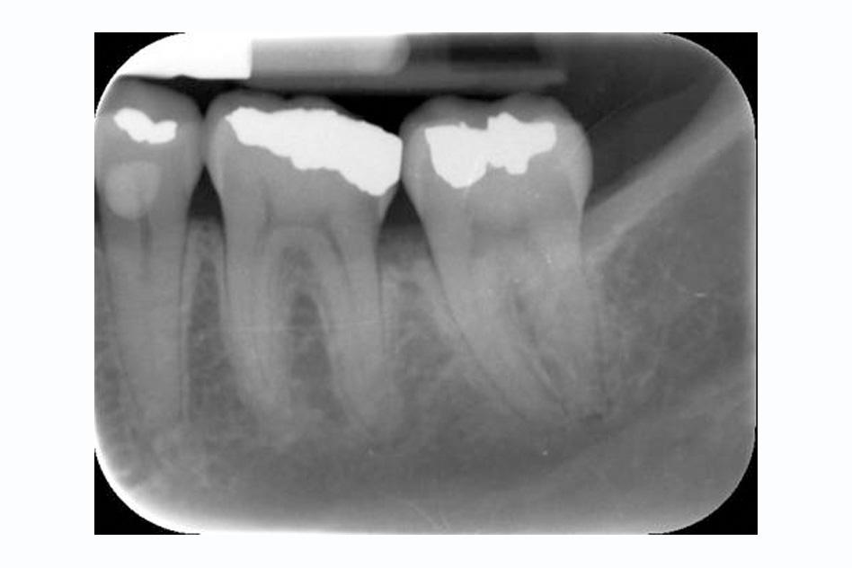 Tech-X-ray