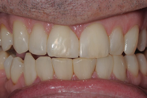 Toothwear-and-Erosion-1-after