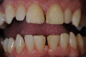 Toothwear-and-Erosion-1-before