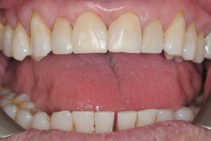 Toothwear-and-Erosion-2-before