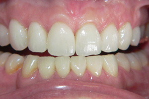 Toothwear-and-Erosion-3-after