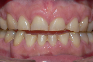 Toothwear-and-Erosion-3-before