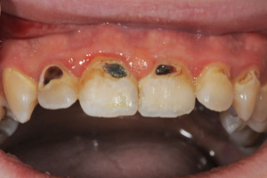 decay-in-front-teeth1