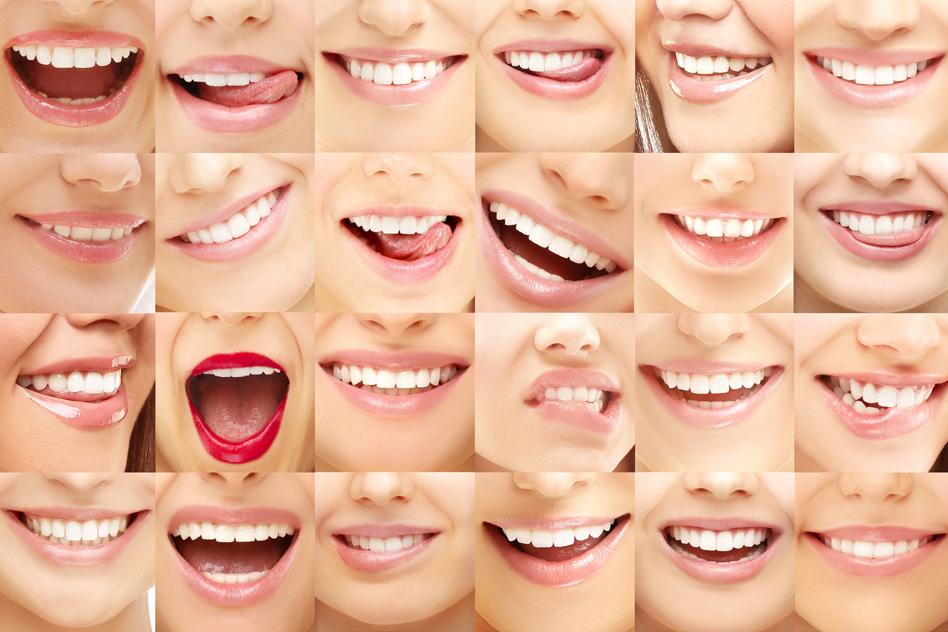 Smile Makeover – Teeth Whitening with Enlighten
