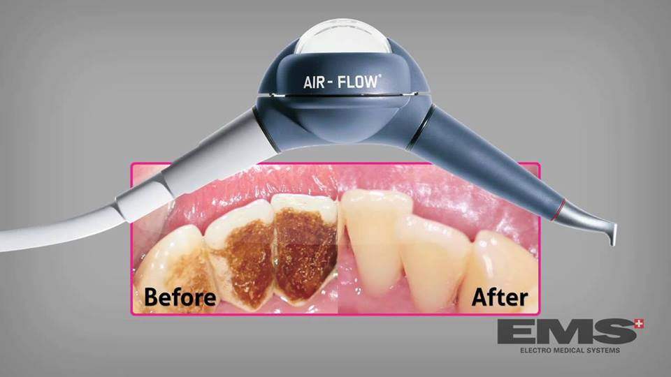 Our Treatments – Airflow that makes your teeth shine